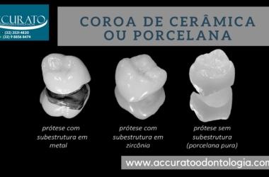 Coroa metalo-cerâmica sobre implante é o mesmo que coroa de porcelana?