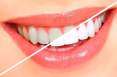 Clareamento dental: descubra tudo sobre esse tratamento