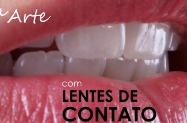 Como Deixar Os Dentes Perfeitos com Lentes De Contato Dental