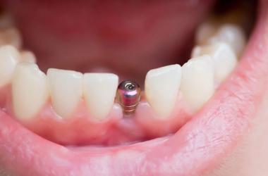Protocolo fica mais barato que o implante tradicional?