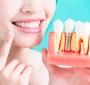 Vantagens do implante dentário para sua saúde bucal