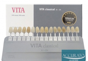 Tons de Branco dos Dentes: Como Escolher A Cor das Lentes de Contato Dental?