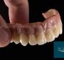 Implante Dentário Fixo