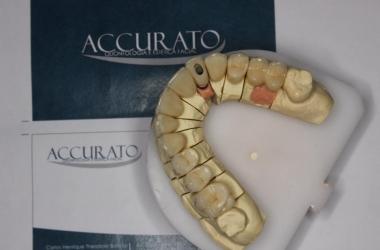 Diferença entre cerâmica e porcelana na Odontologia